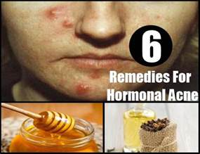 natural cures for hormonal acne picture 1