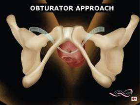 bladder sling in female picture 10