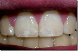 fluoride hurt my childrens teeth picture 7