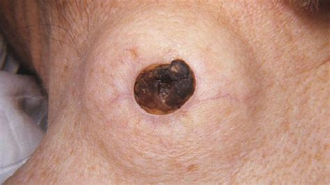 cysts fat people picture 18