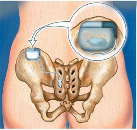 bladder pacemaker picture 5
