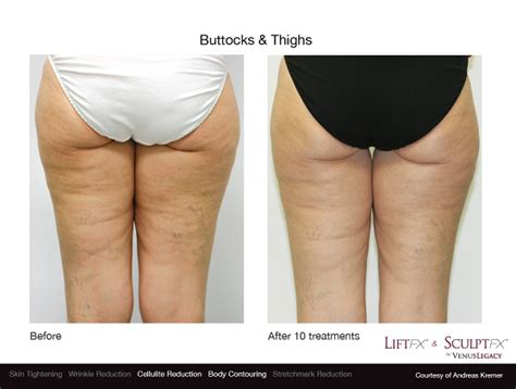 cellulite reduction treatment picture 5