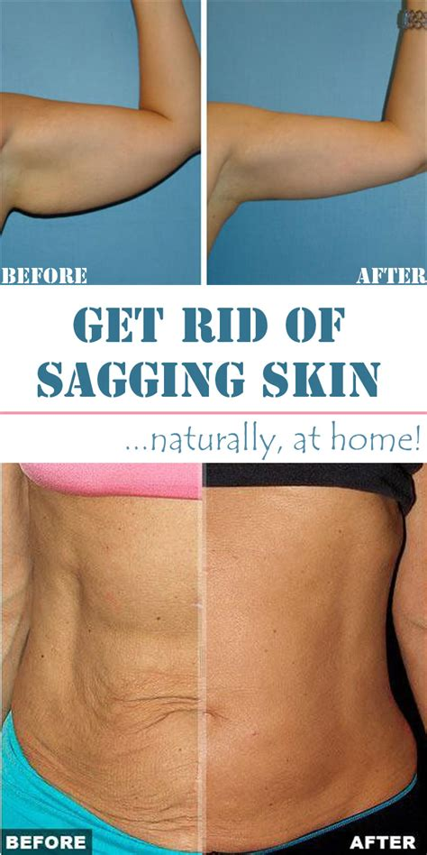 cure for sagging skin picture 2