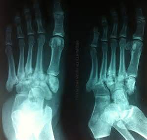 charcot joint picture 19