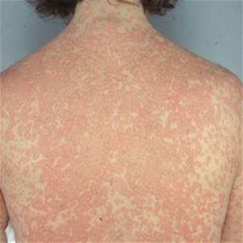 free natural cures for skin rashes picture 8