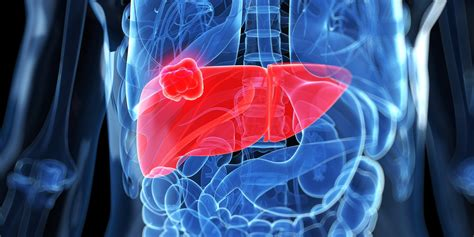 anong sintomas liver cancer picture 2