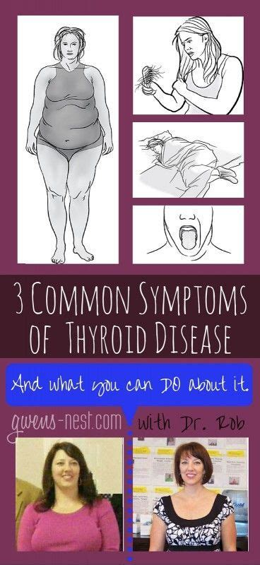 all known symptoms of thyroid problems picture 8