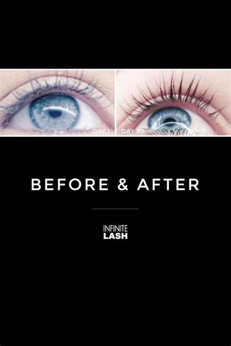order eyelash growth serum picture 13