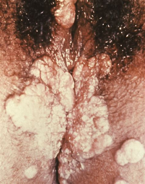congenital warts picture 13