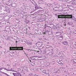 adenocarcinoma survival rate prostate picture 15
