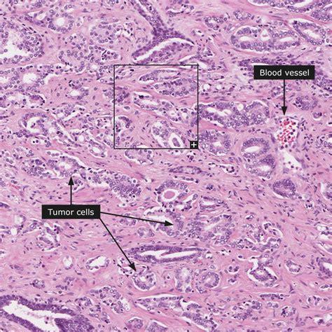 adenocarcinoma survival rate prostate picture 18