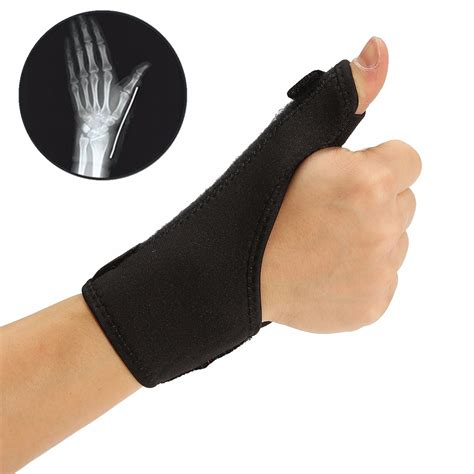 joint pain in the forearm picture 11
