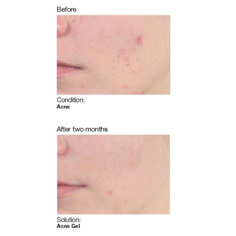 acne ling tukwila wa picture 11