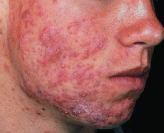 acne nodules and cysts picture 3