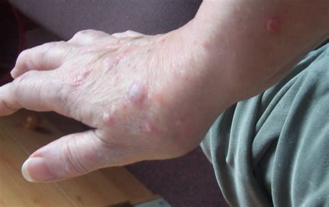 Physical urticaria picture 5