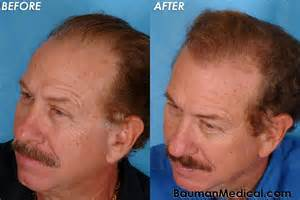 before and after hair center picture 15