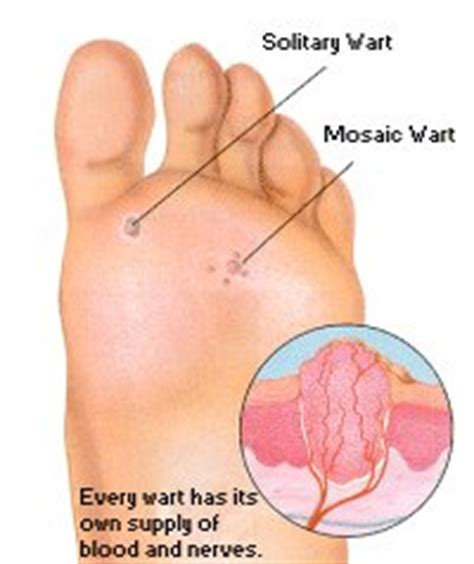 heal warts picture 11