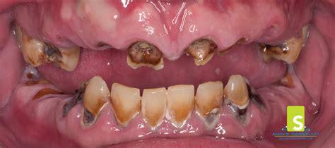 cavaties in teeth picture 19