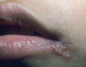 a pic what herpes look like on your picture 11