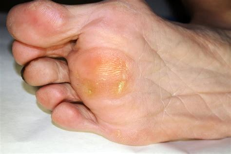 heel skin is caused by picture 2