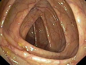 erotic male anoscopy picture 10