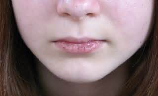 causes of chapped lips picture 5