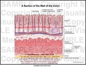 colon wall picture 6