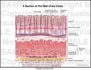 colon wall picture 9