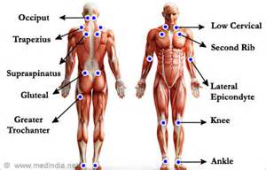 antidepressant muscle pain picture 18