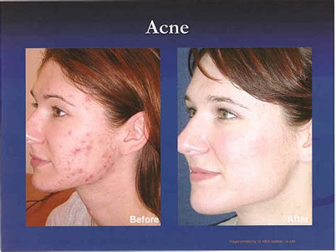 aldactone and acne picture 15