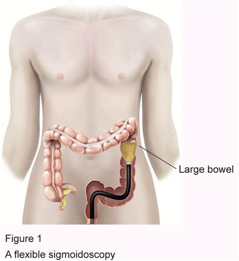 colon polyp picture 6