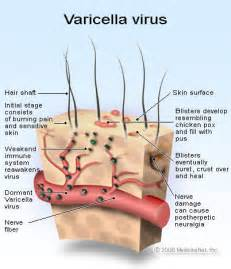 what nerves are affected by herpes picture 7
