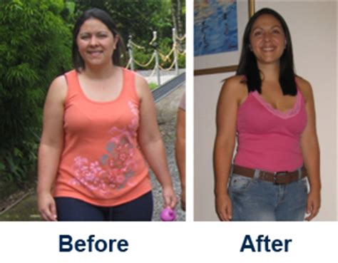 weight loss doctor mass picture 5