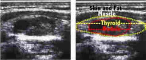 complex thyroid nodule picture 3