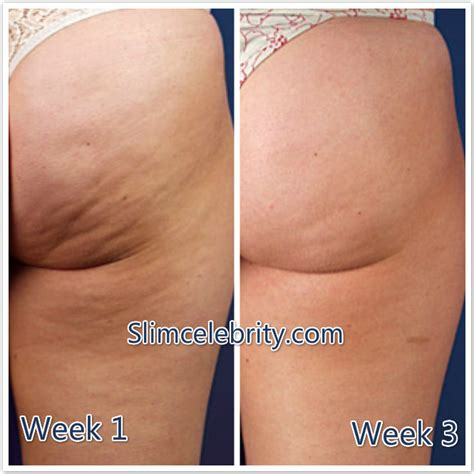 the truth about cellulite - how do you picture 8