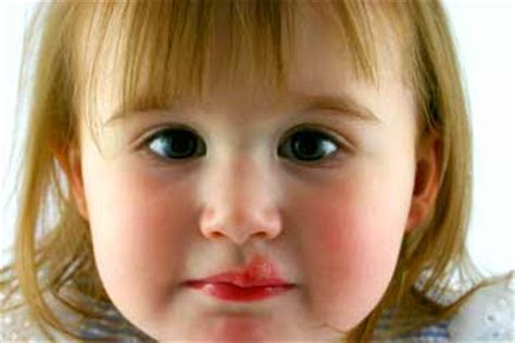 although, cold sores is one of the symptoms picture 15