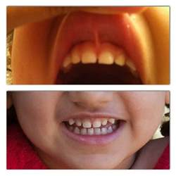 baby teeth losing picture 11