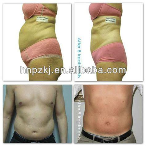 lipo light treatment reviews picture 7