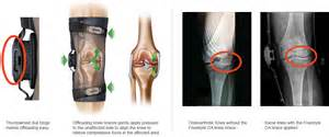 joint replacement hip and knee pain picture 5