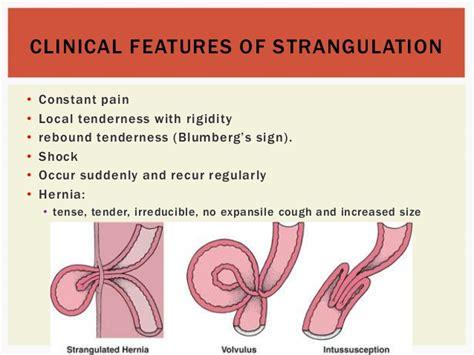 intestinal strangulation in s picture 7