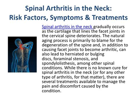 arthritic pain relief picture 2