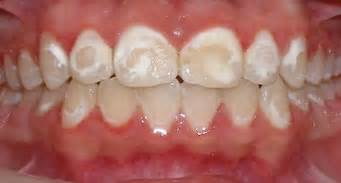 decalcification of teeth picture 6