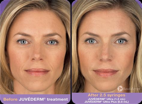 bbl laser for acne picture 13