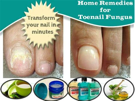 nail fungus home remedies picture 7