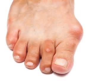 foot problems sore toe joint picture 7