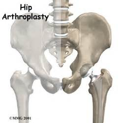 image of hip replacement joint picture 2