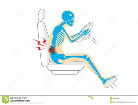 driver muscle pain picture 2