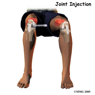 arthritis joint injections picture 1