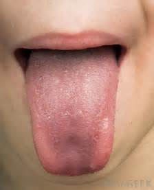 tongue warts picture 11