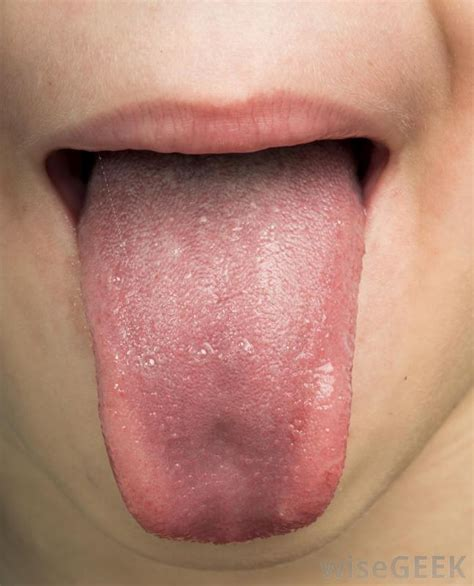 warts on back of tounge picture 11